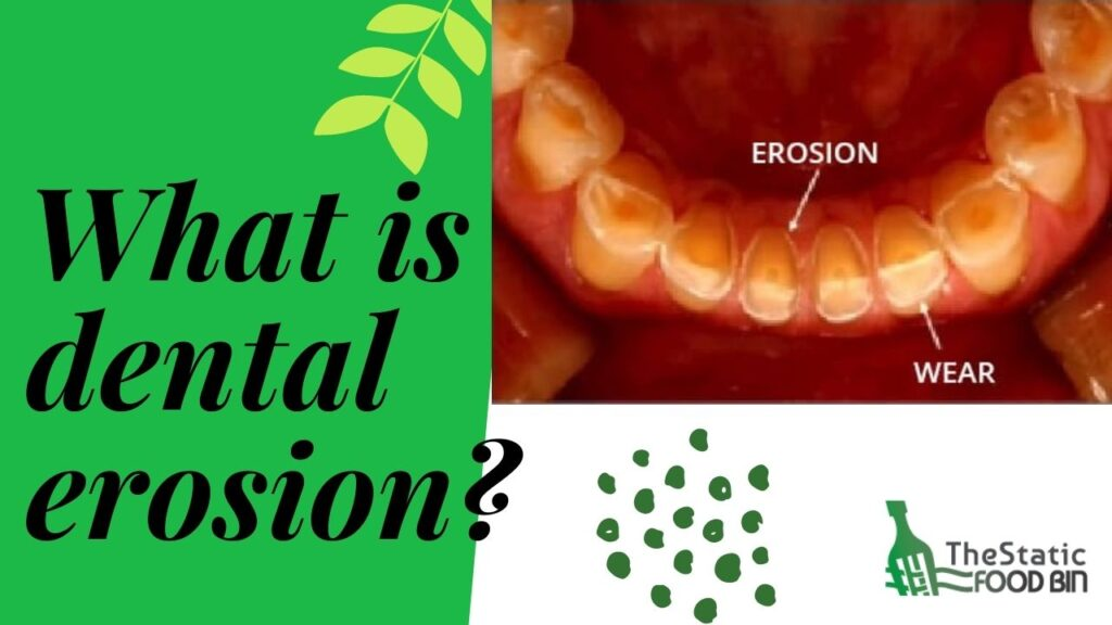 What is dental erosion