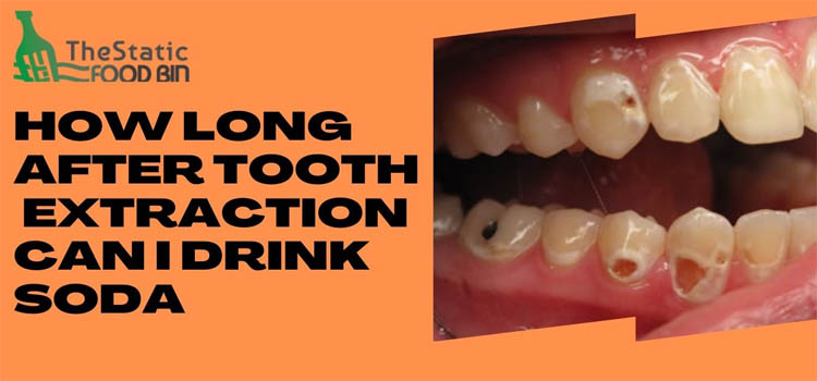 How Long After Tooth Extraction Can I Drink Soda